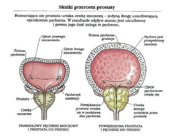 powiększenie prostaty